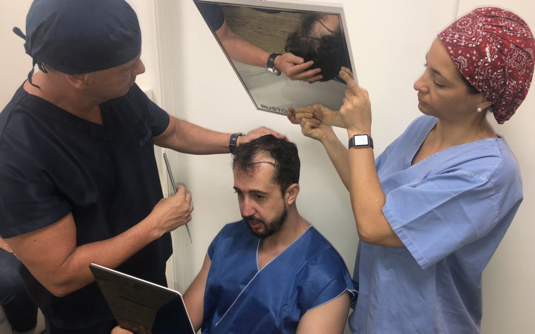 Jornalista Thiago Rocha realiza sonho de se submeter a transplante capilar