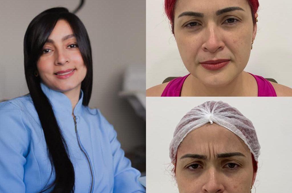 Aos 29 anos, Nanda Marques coloca aplica botox no rosto pela primeira vez