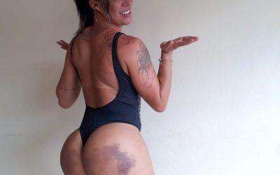 Musa fitness, Pâmella Michelinny choca ao mostrar hematomas após procedimento estético